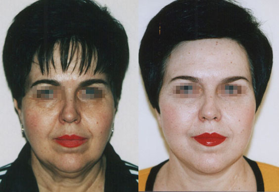 Подтяжка лица (фейслифтинг) 5