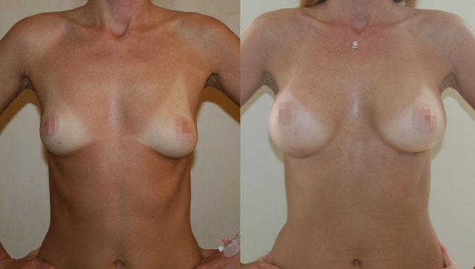 Увеличение груди (аугментационная маммопластика) 28