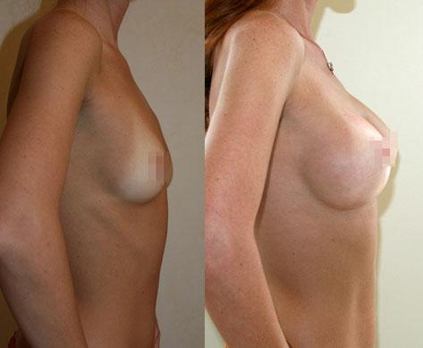 Увеличение груди (аугментационная маммопластика) 27