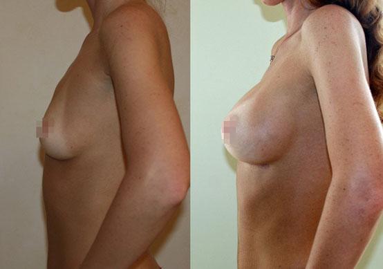Увеличение груди (аугментационная маммопластика) 26