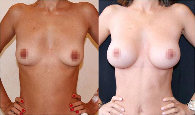 Увеличение груди (аугментационная маммопластика) 24