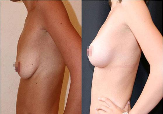 Увеличение груди (аугментационная маммопластика) 25