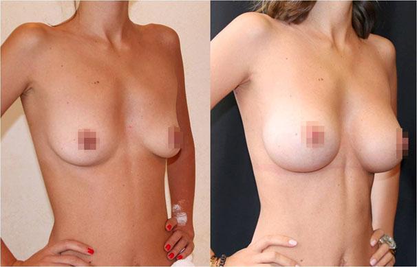 Увеличение груди (аугментационная маммопластика) 22