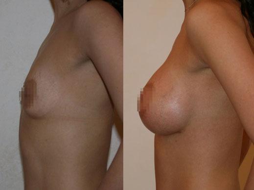 Увеличение груди (аугментационная маммопластика) 18