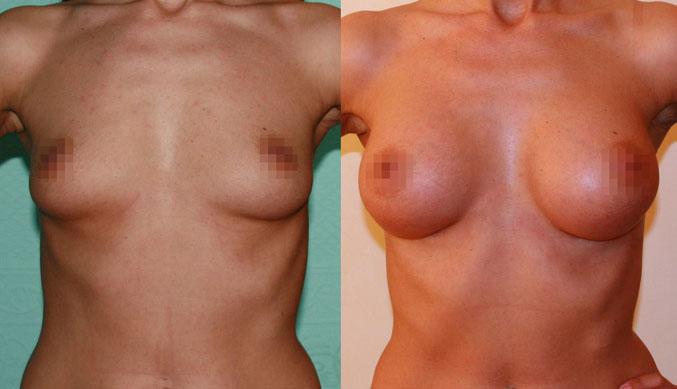 Увеличение груди (аугментационная маммопластика) 19
