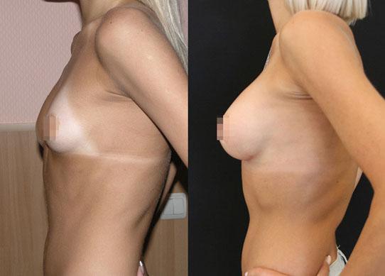 Увеличение груди (аугментационная маммопластика) 36