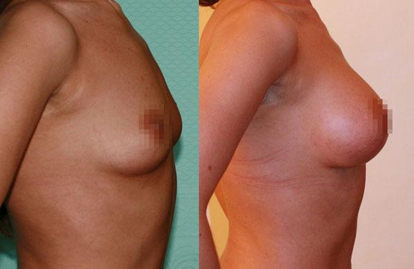 Увеличение груди (аугментационная маммопластика) 20
