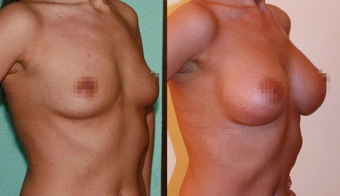 Увеличение груди (аугментационная маммопластика) 16