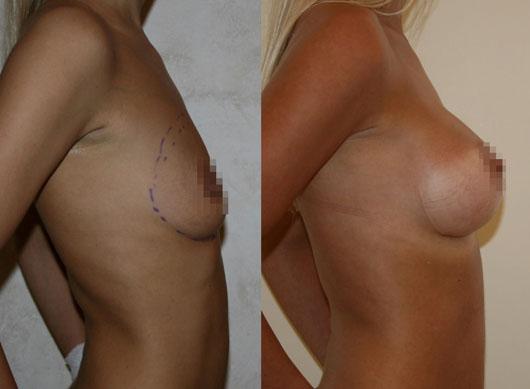 Увеличение груди (аугментационная маммопластика) 17
