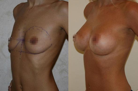 Увеличение груди (аугментационная маммопластика) 14