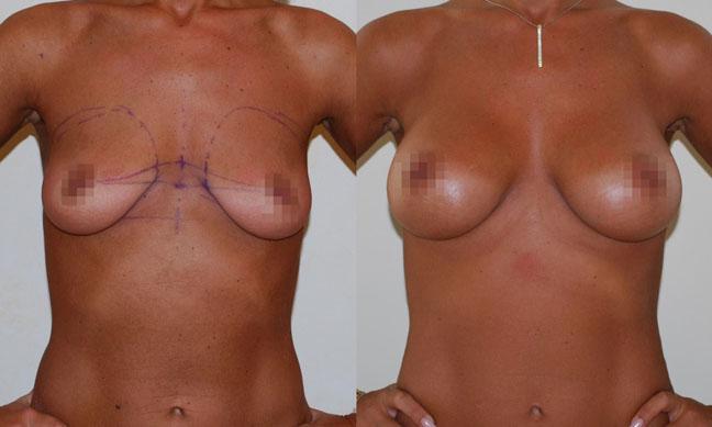Увеличение груди (аугментационная маммопластика) 13