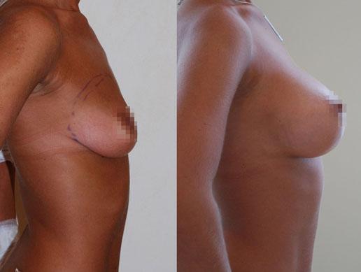 Увеличение груди (аугментационная маммопластика) 12