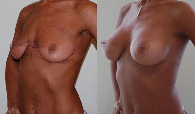 Увеличение груди (аугментационная маммопластика) 9