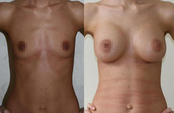 Увеличение груди (аугментационная маммопластика) 10