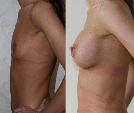 Увеличение груди (аугментационная маммопластика) 8