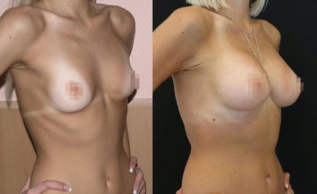 Увеличение груди (аугментационная маммопластика) 35