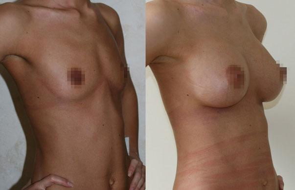 Увеличение груди (аугментационная маммопластика) 11