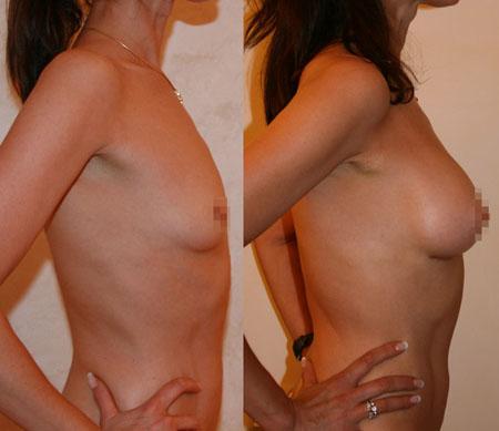 Увеличение груди (аугментационная маммопластика) 7