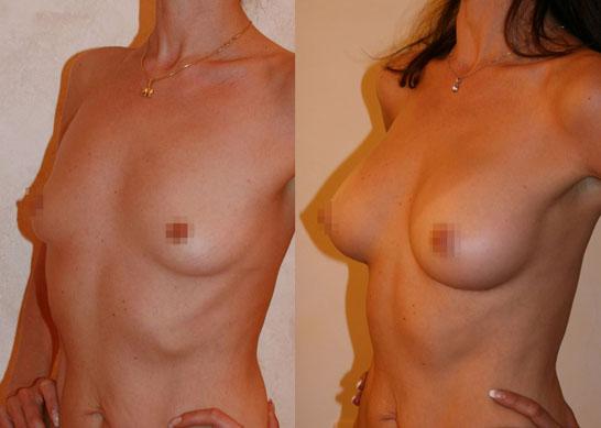 Увеличение груди (аугментационная маммопластика) 6