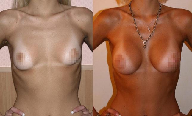 Увеличение груди (аугментационная маммопластика) 3