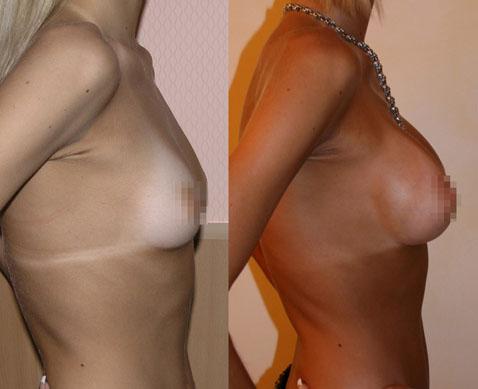 Увеличение груди (аугментационная маммопластика) 4