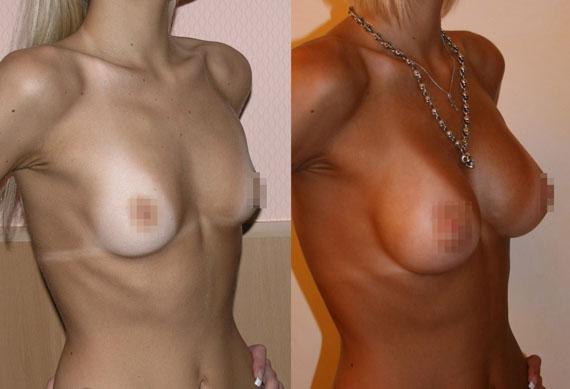 Увеличение груди (аугментационная маммопластика) 2