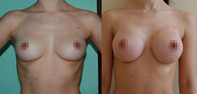 Увеличение груди (аугментационная маммопластика) 1