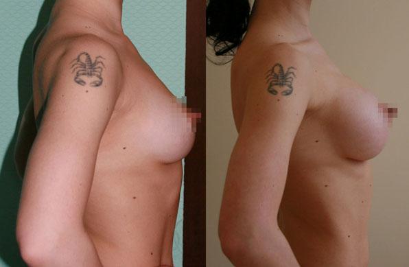 Увеличение груди (аугментационная маммопластика) 5