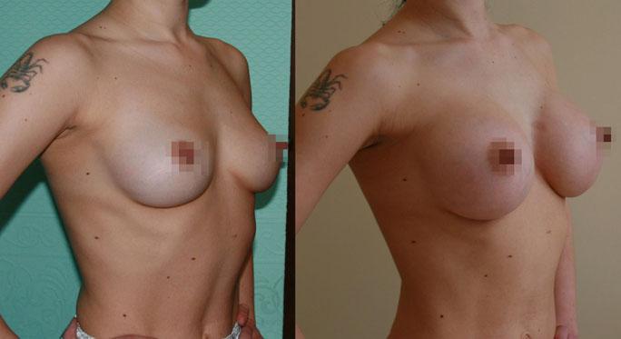 Увеличение груди (аугментационная маммопластика)