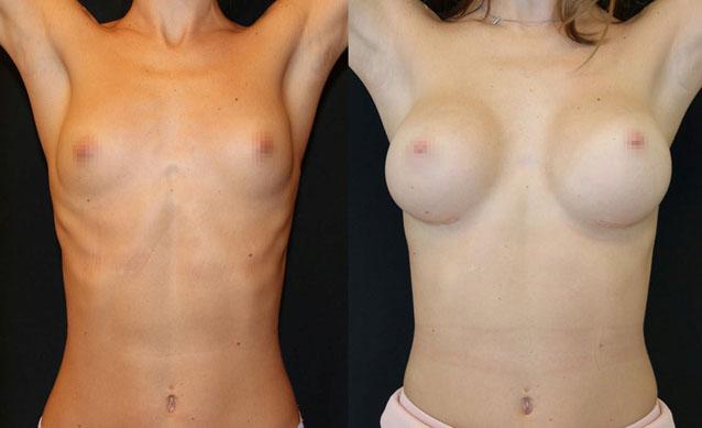 Увеличение груди (аугментационная маммопластика) 34