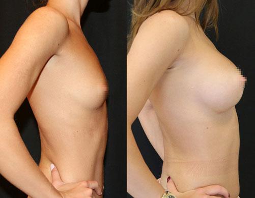 Увеличение груди (аугментационная маммопластика) 30