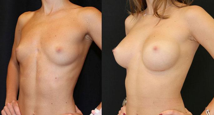 Увеличение груди (аугментационная маммопластика) 31