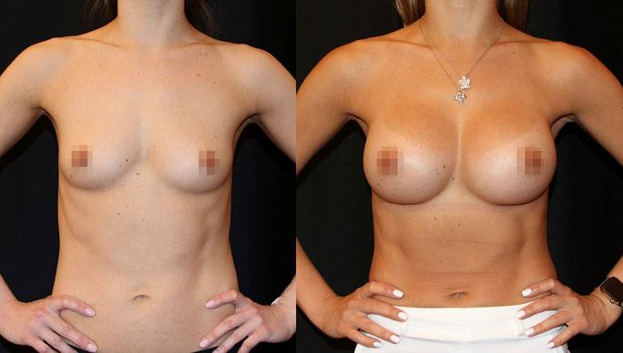 Увеличение груди (аугментационная маммопластика) 29