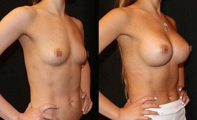 Увеличение груди (аугментационная маммопластика) 32
