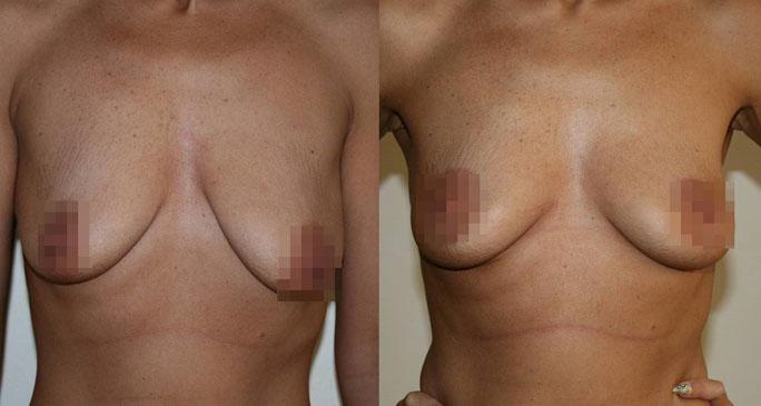 Подтяжка груди (мастопексия) 8