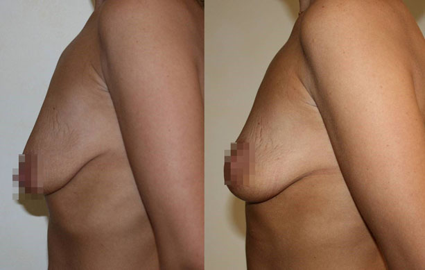 Подтяжка груди (мастопексия) 9