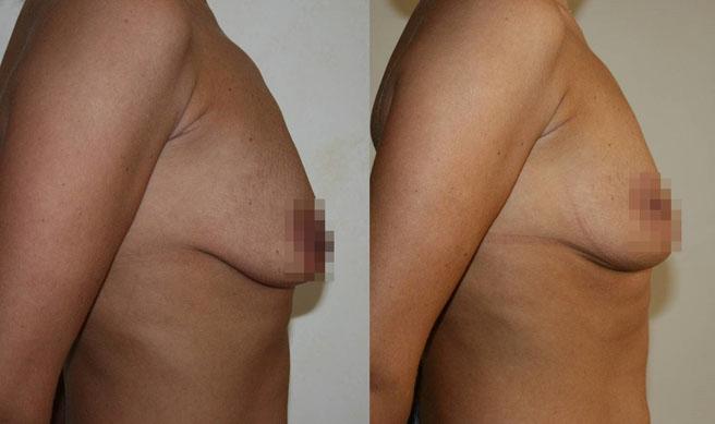 Подтяжка груди (мастопексия) 6