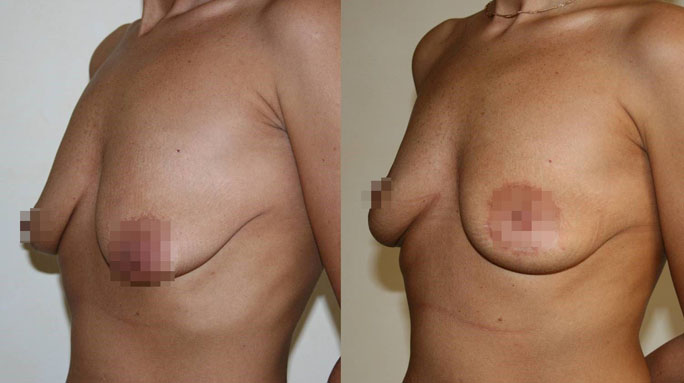 Подтяжка груди (мастопексия) 5