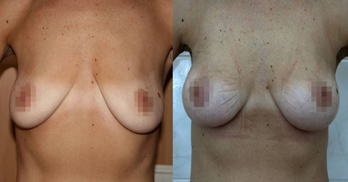 Подтяжка груди (мастопексия) 7