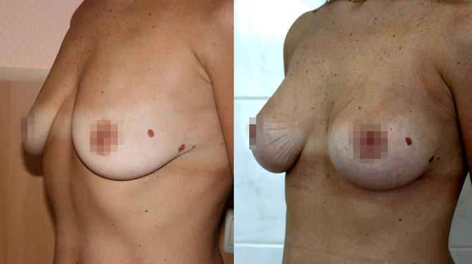 Подтяжка груди (мастопексия) 4
