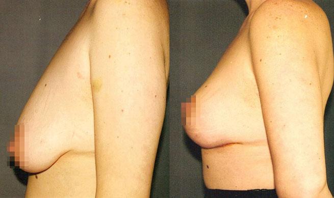 Подтяжка груди (мастопексия) 1
