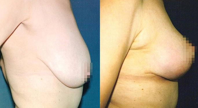 Подтяжка груди (мастопексия) 3