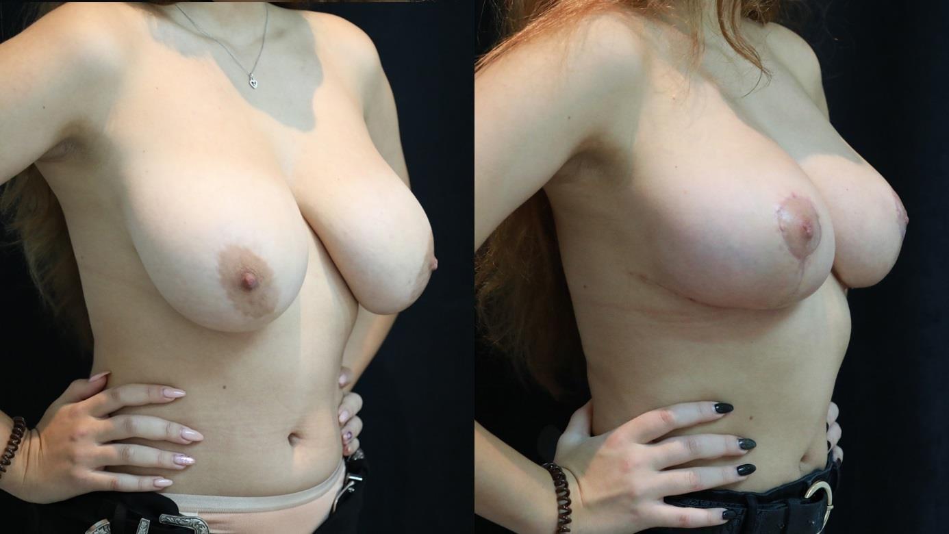 грудь 3