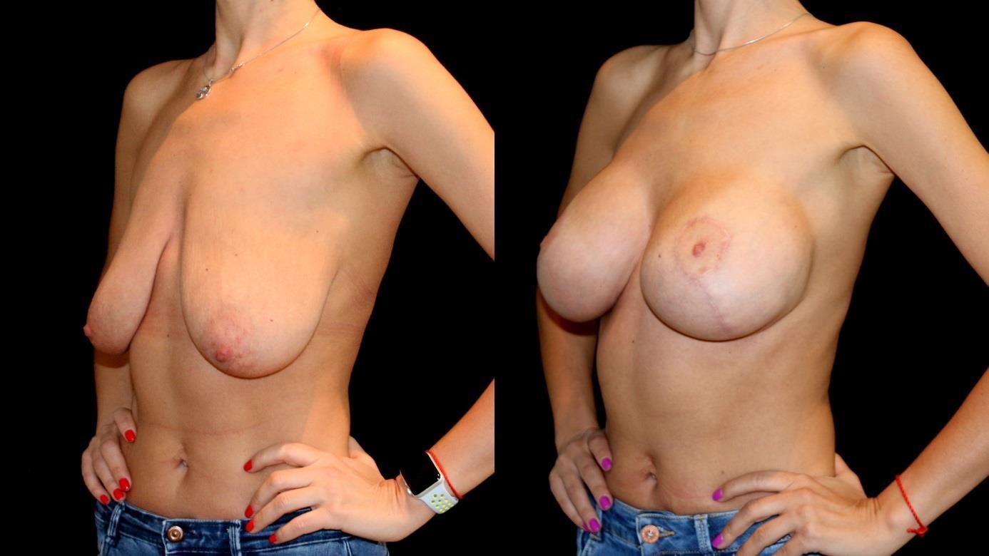 Увеличение груди в Киеве