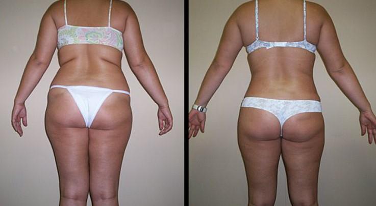 липоскульптуринг тела 4
