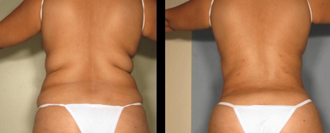 липоскульптуринг тела2