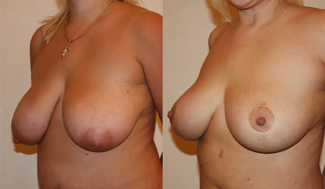 Разбухшие соски у женщины, фото вагин у гинеколога ххх