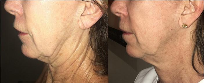Фото до лечения и перед 2–ой процедурой