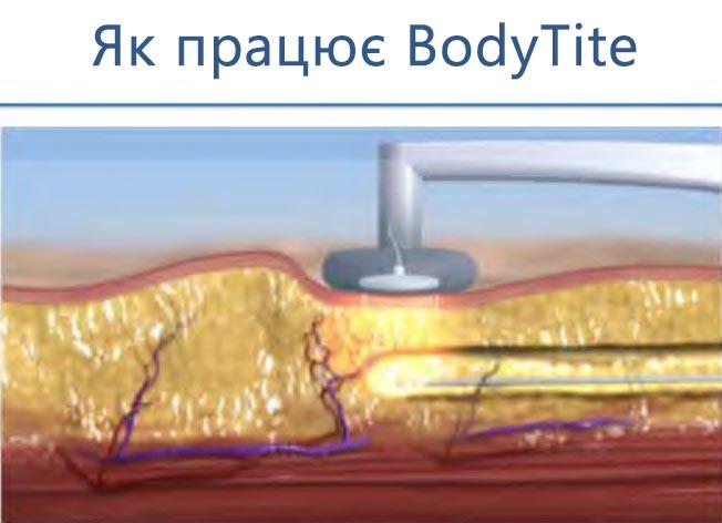 Як працює аппарат bodytite