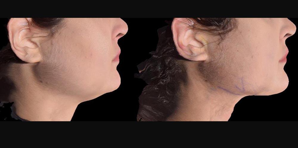 morpheus-фото до и после3